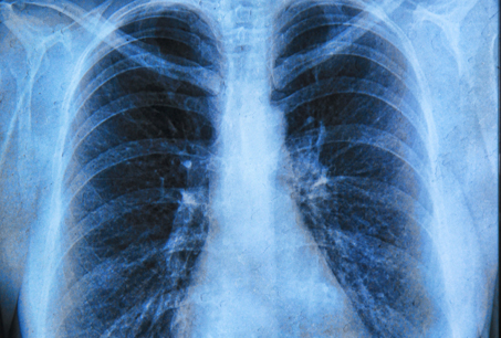 Lung+cancer