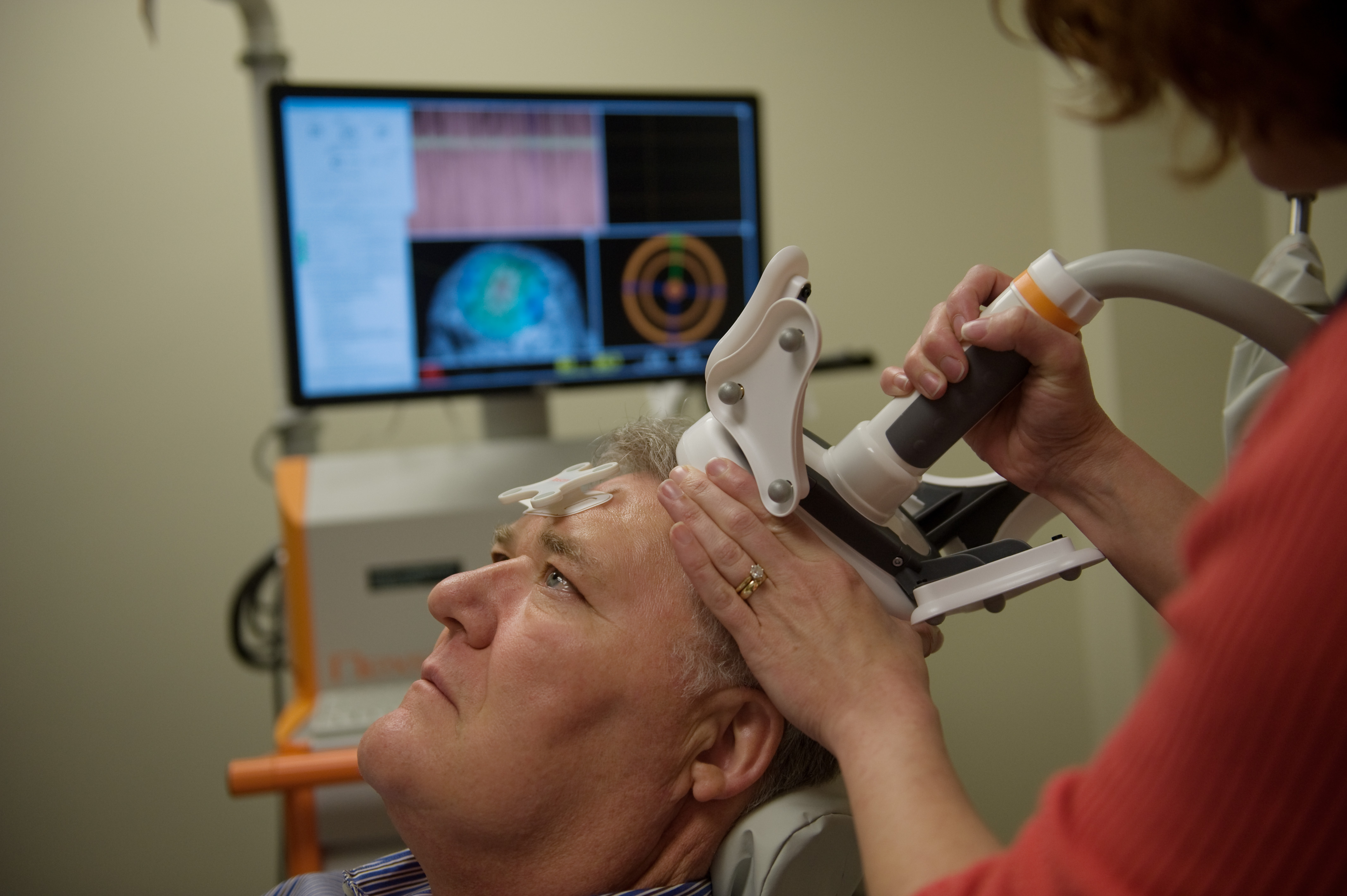 Clinical Trial Tests Possible Benefits of Brain Stimulation on