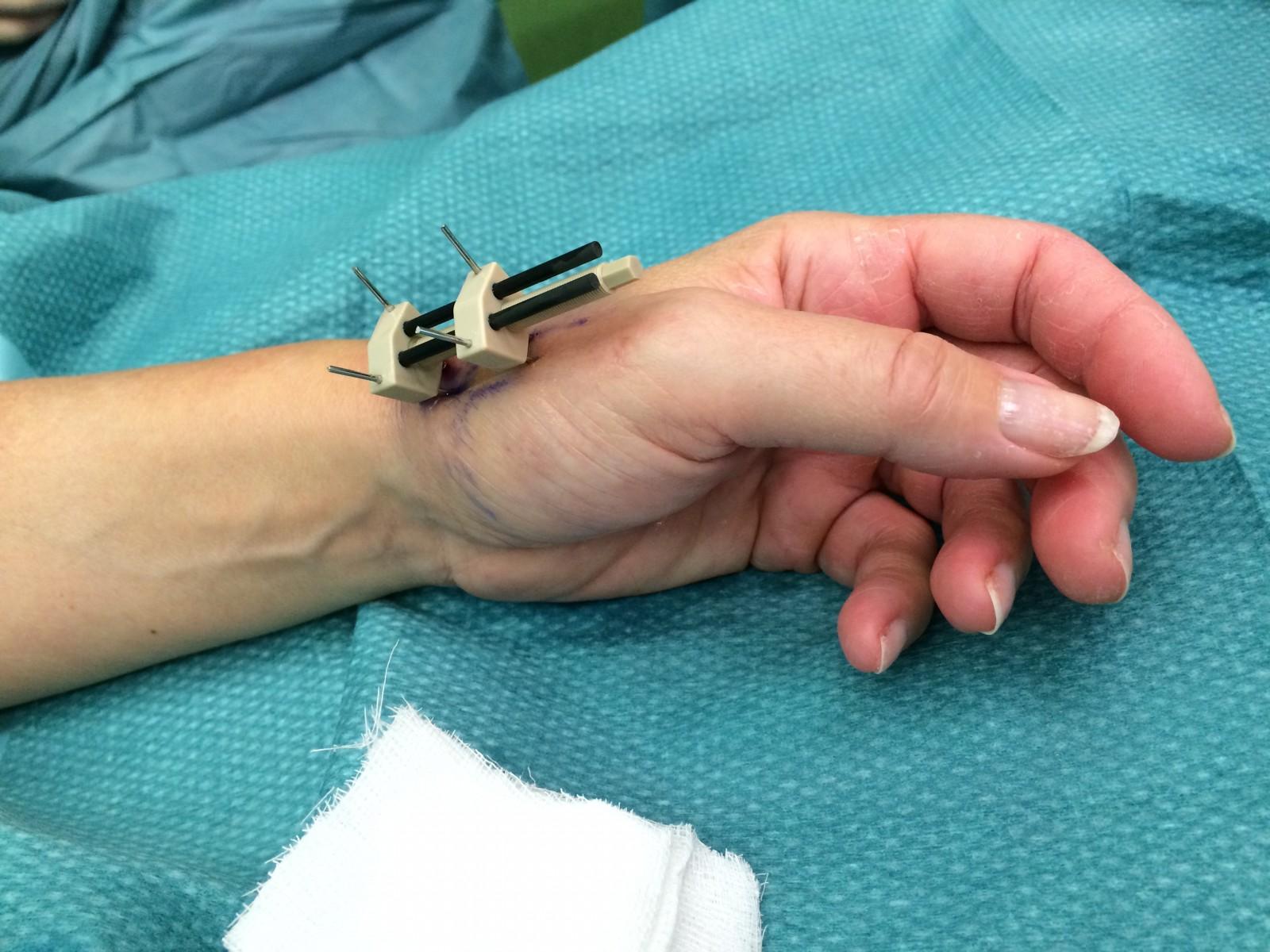 hulpmiddelen bij artrose handen