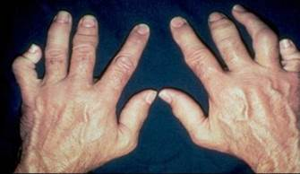 Hands with psoriatic arthritis