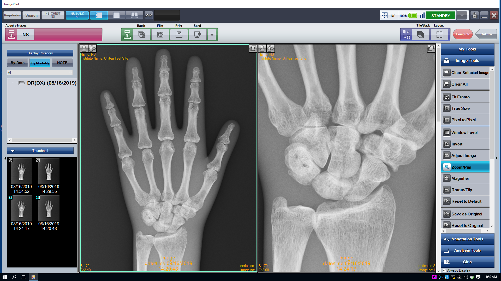 ImagePilot screen Ortho_Hand_Zoom