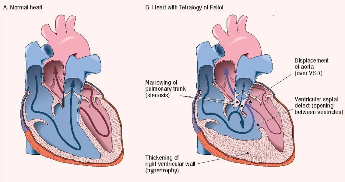 Tetralogy Of Fallot How Jimmy Kimmel Is Bringing New