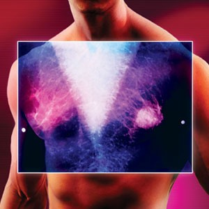 Breast Cancer in Men: What You Need to Know