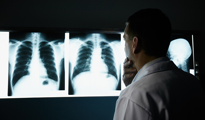 How a Low-Dose CT Could Be the Key to Lung Cancer Survival