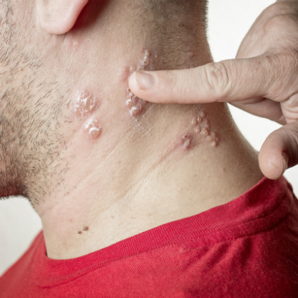Shingles, which is caused by the same virus as chickenpox, can lead to painful blisters that can last for weeks. Severe cases can result in scarring, long-term nerve pain or even blindness.