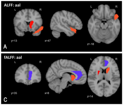 Some of the most reliable indicators of schizophrenia the new diagnostic tool found are highlighted in this image. Red indicates elevated activity and blue indicates suppressed activity in the brain. (Image: Sunil Kalmady)