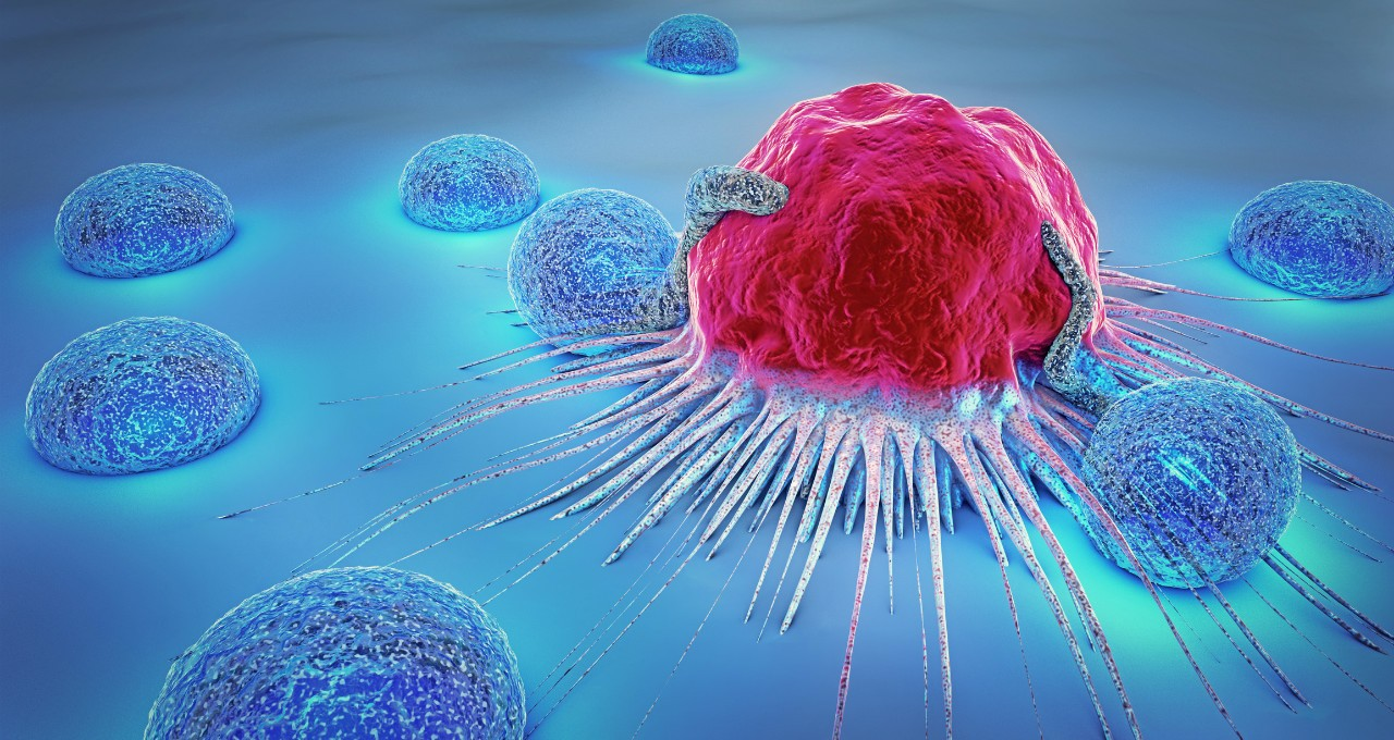 Cancer immunotherapy aims to help the body's T-cells attack cancer cells (pictured), but it can end up causing the T-cells to attack healthy cells instead of cancer cells. New research from UAlberta may explain why that happens, and could even shed light on how autoimmune diseases develop in general.