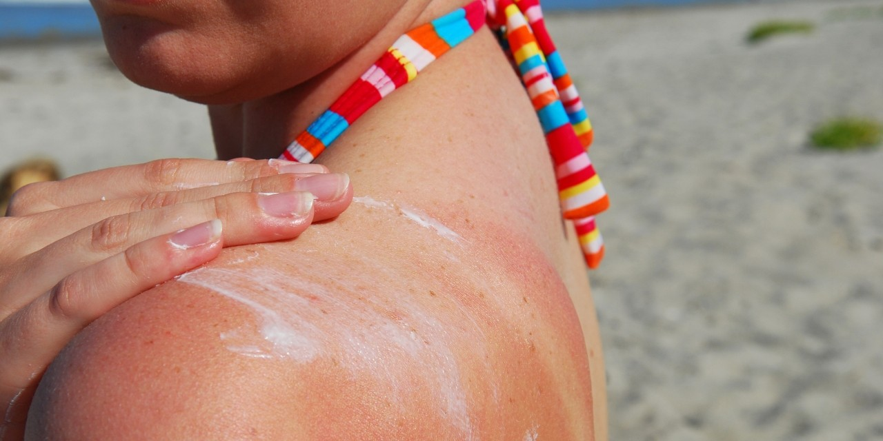 Sunscreen may be the first layer of defence against sunburn, but not putting on enough is a common mistake, according to a U of A dermatologist. (Photo: Getty Images)