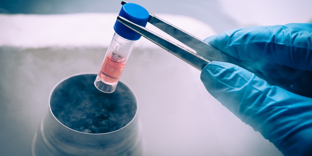 Marketing of unproven stem cell therapies has outpaced legal and regulatory efforts to protect the public from false advertising—and can undermine legitimate stem cell science, argues U of A health law expert Timothy Caulfield. (Photo: Getty Images)