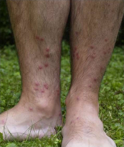 4 common water rashes and what you can do about them