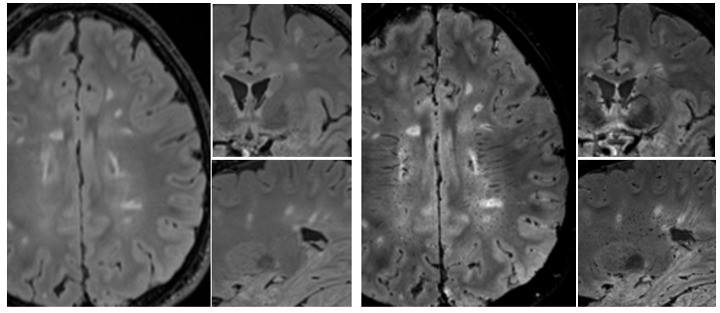 Brain images of a patient evaluated for multiple sclerosis show non-specific hyperintense lesions from a conventional MRI (left), and novel imaging biomarker specific to multiple sclerosis pathology from an advanced MRI (right). Image courtesy of Pascal Sati, PhD.