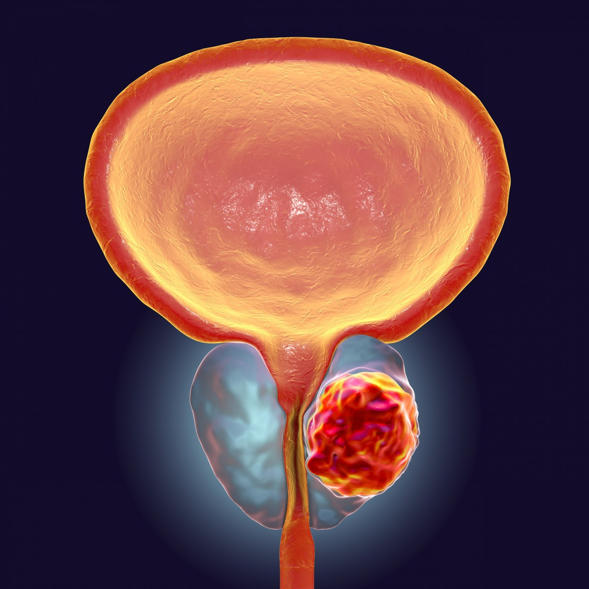 Prostate cancer cells are depicted in the circle on the lower right. Illustration by Getty Images.