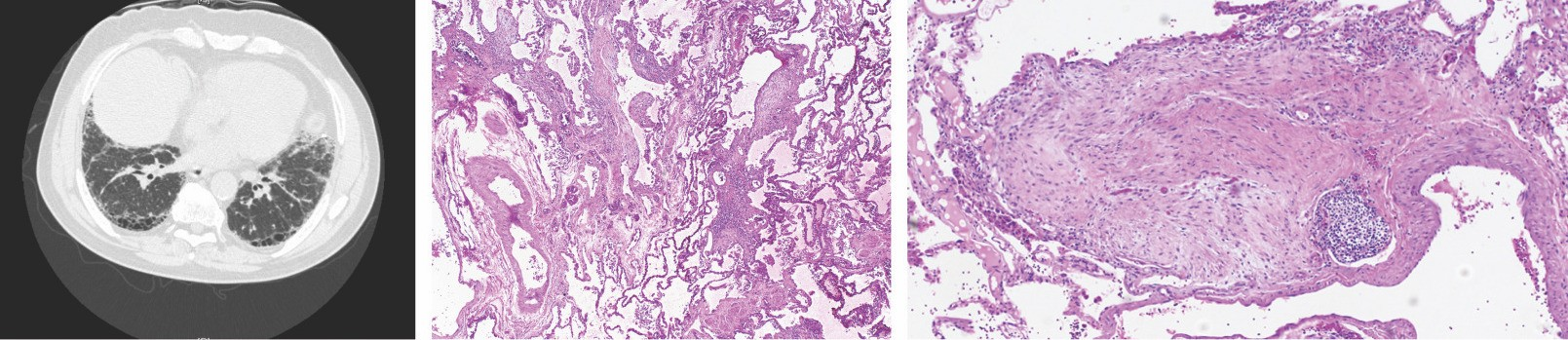 From left, a chest CT scan of a patient with idiopathic pulmonary fibrosis and lung biopsies displaying the typical disease pattern and scarring. Images by Cedars-Sinai.
