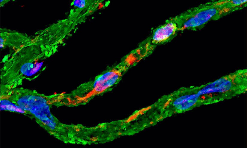 Image shows degenerated vascular cells (pericytes, in green) with accumulation of vascular amyloid-beta (in red) in the retina of an Alzheimer's disease patient. Image by Cedars-Sinai.