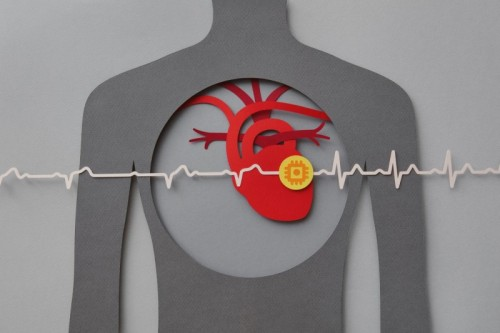 Cardiac Care During Pandemic Reveals Digital Shifts