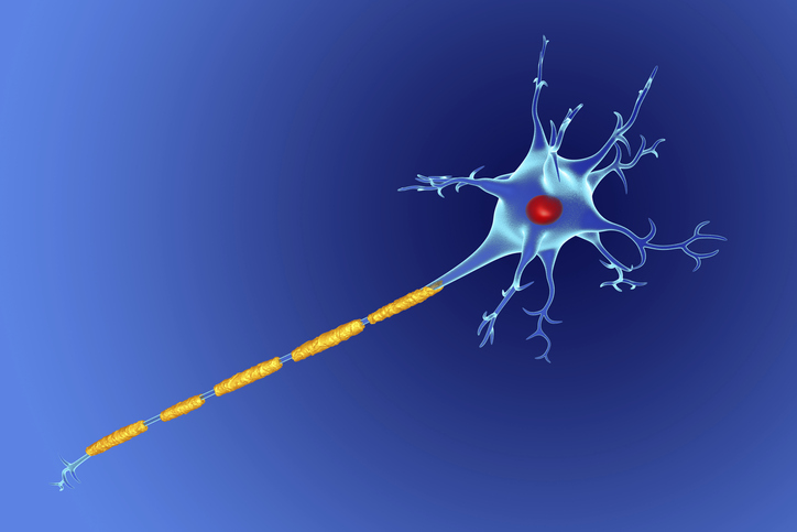 Study of Multiple Sclerosis Patients Shows 18 Percent Misdiagnosed