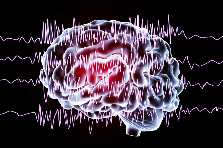 Brain and brainwaves in a patient with epilepsy. Illustration by Getty.
