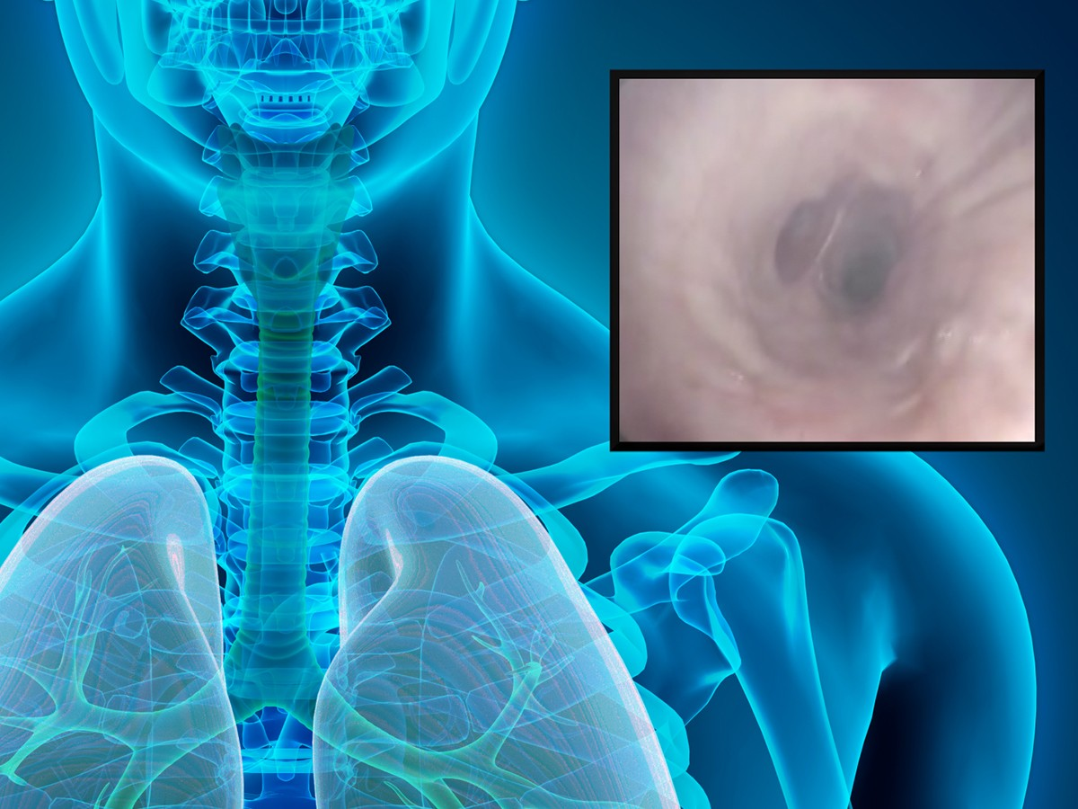 A bronchoscopy procedure was used in the study to test for inflammation and smoking-related effects.