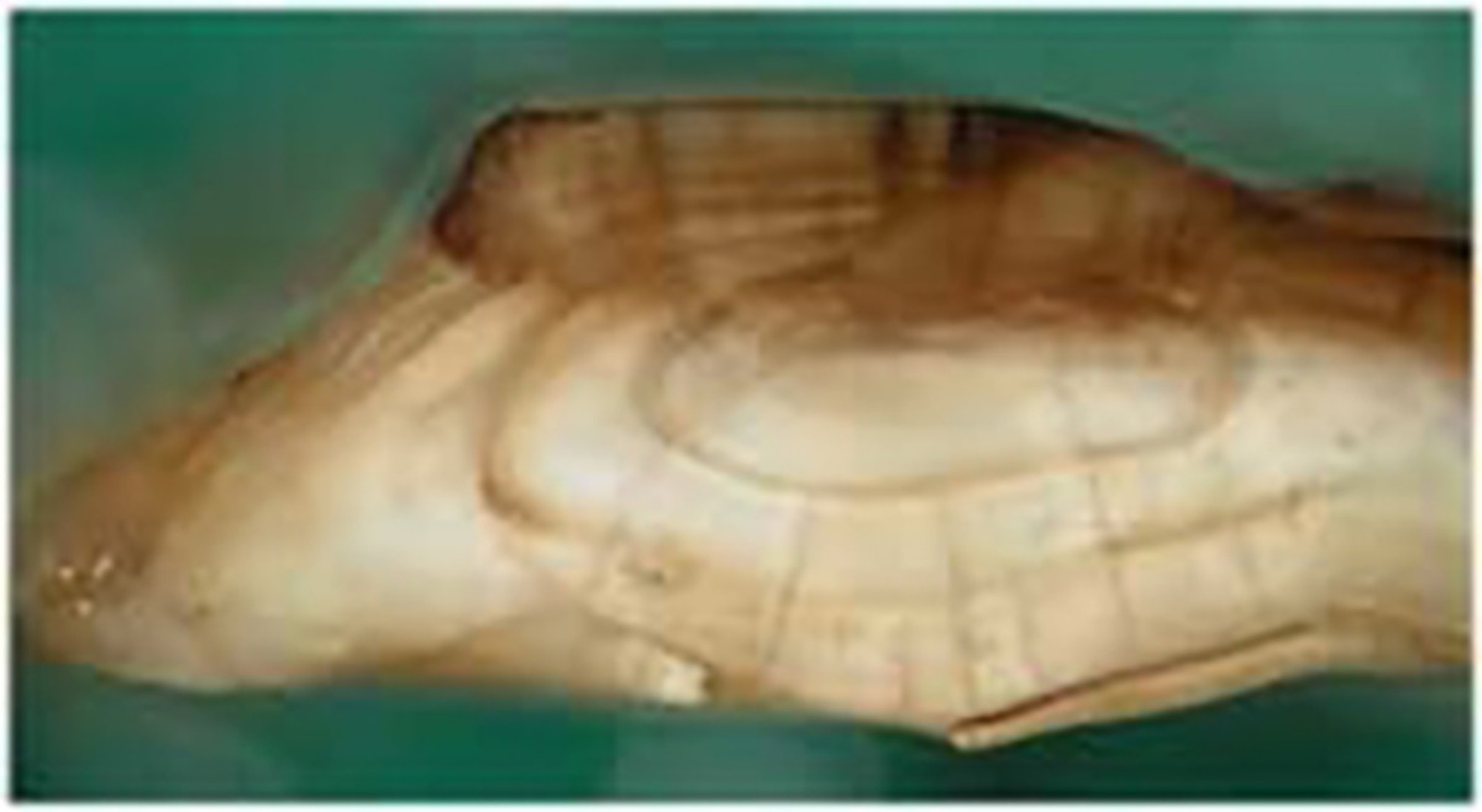 Cross-section of a walleye ear bone, or otolith, showing growth rings. Image courtesy of Ohio State University.