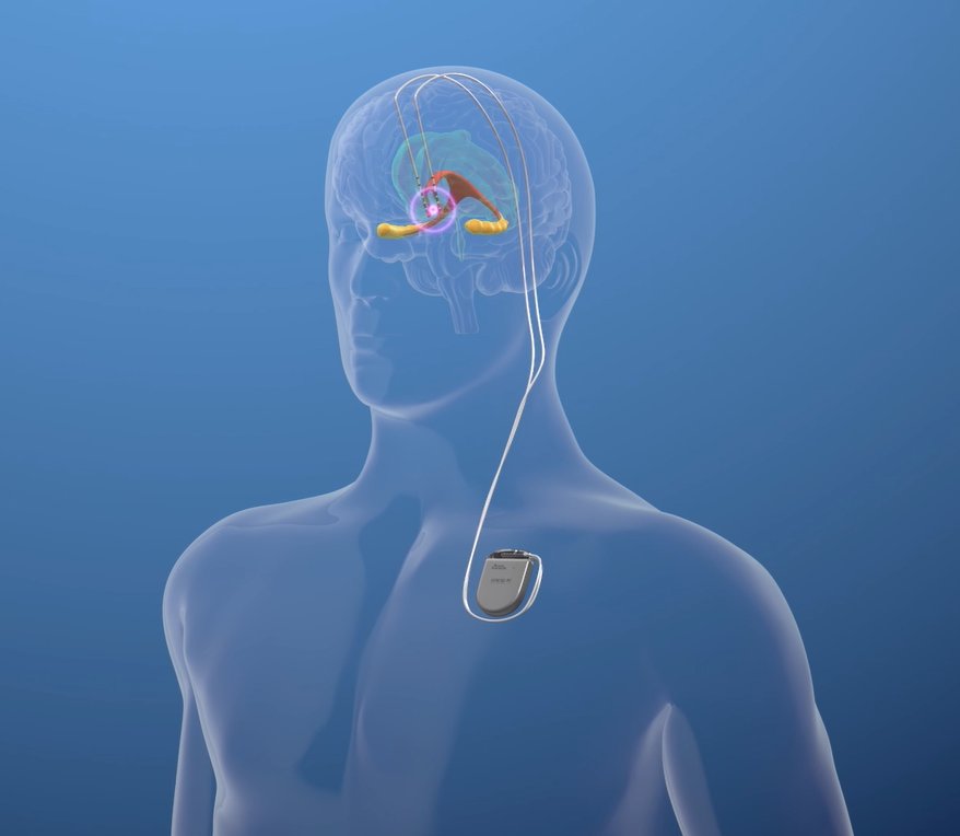 Keck Medicine of USC is enrolling individuals in a clinical trial to examine the safety and effectiveness of deep brain stimulation to treat mild Alzheimer's disease. Participants will have electrodes implanted into their brains that connect to a battery pack underneath the collarbone.